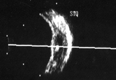 Ultrasonografia Oculare