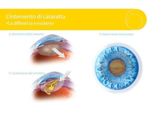 Cataract Intervention