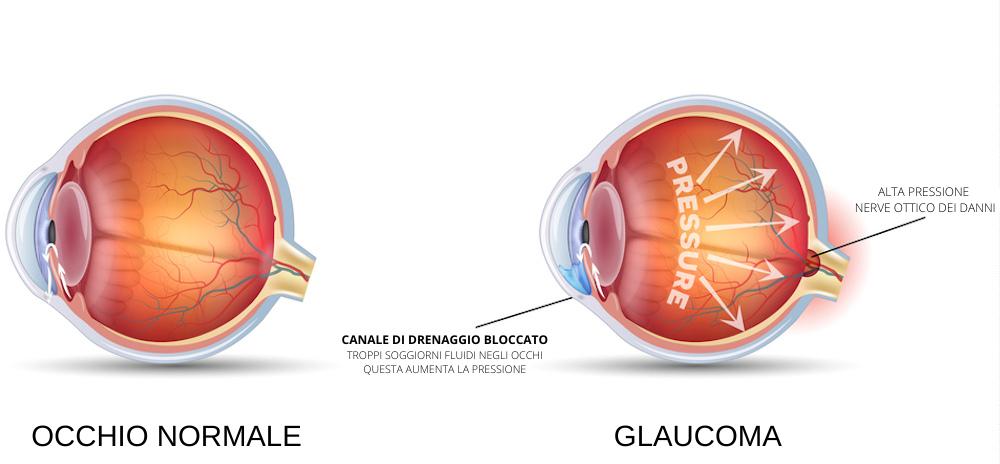 glaucoma ITA