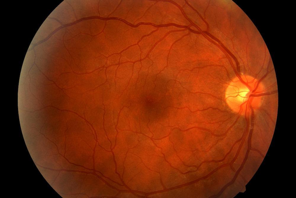 diabetic retinopathy alberto bellone