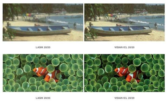 VISIAN ICL Lens 1