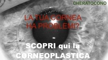 Corneoplastica