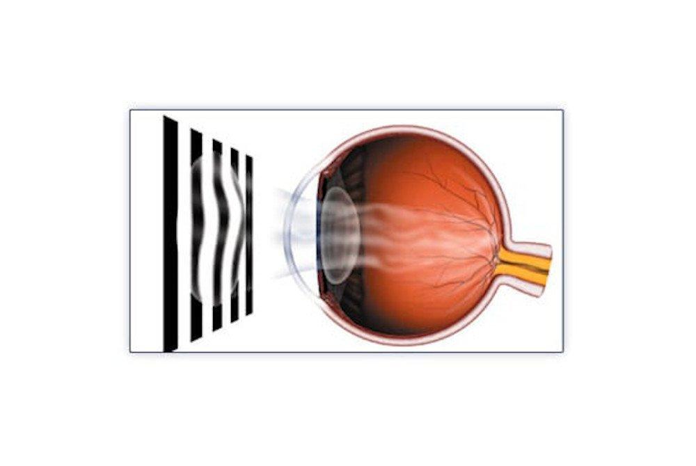 astigmatism alberto bellone