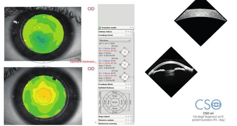 Tomografia coerenza ottica 2