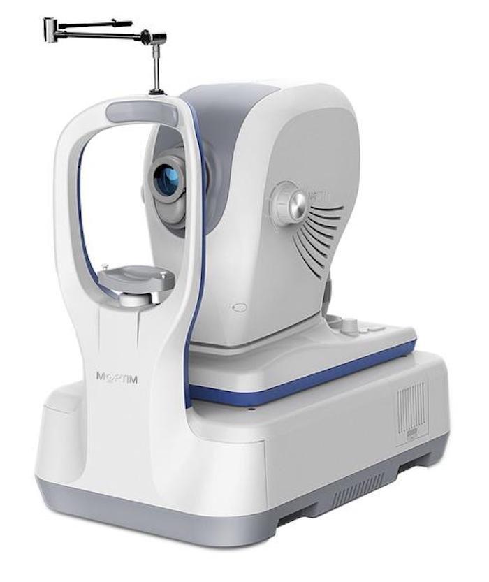 Tomografia coerenza ottica_Mocean_4000_1_Dr. Alberto Bellone