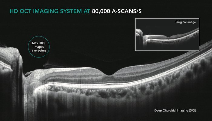 Tomografia coerenza ottica_Mocean_4000_5_Dr. Alberto Bellone