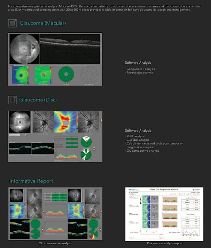 Tomografia coerenza ottica_Mocean_4000_6_Dr. Alberto Bellone