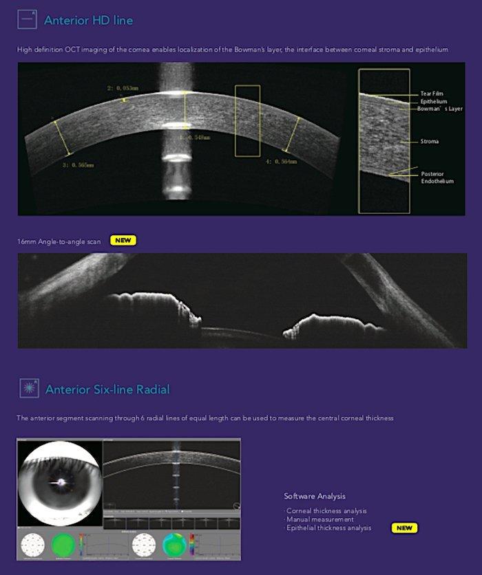 Tomografia coerenza ottica_Mocean_4000_7_Dr. Alberto Bellone