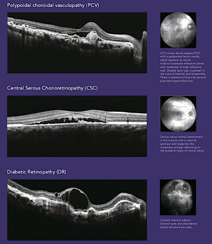 Tomografia coerenza ottica_Mocean_4000_9_Dr. Alberto Bellone