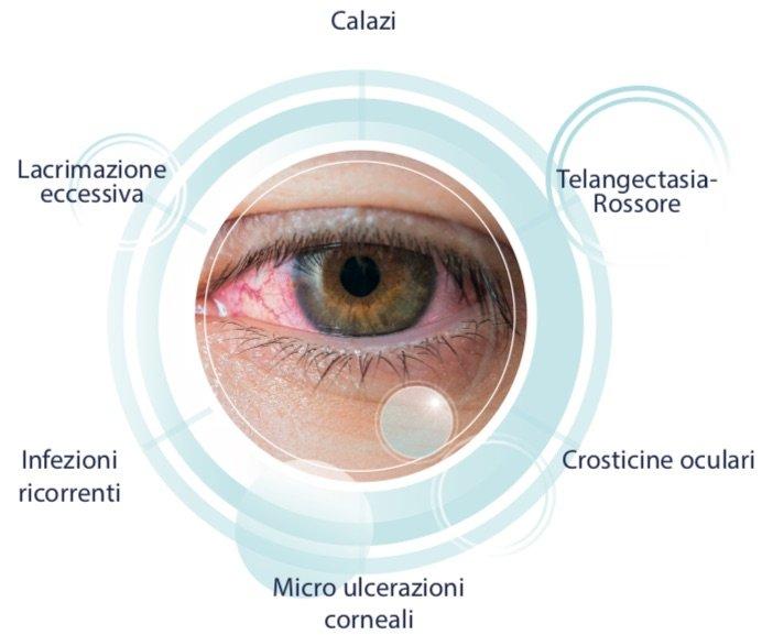 occhio secco 1