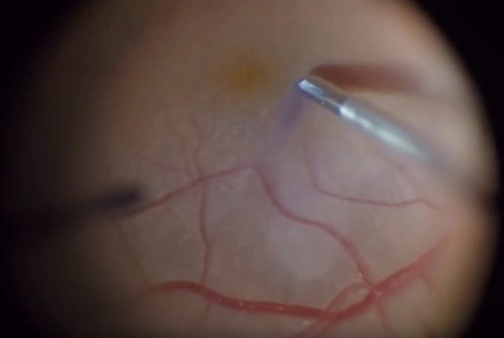Minimally Invasive Vitrectomy