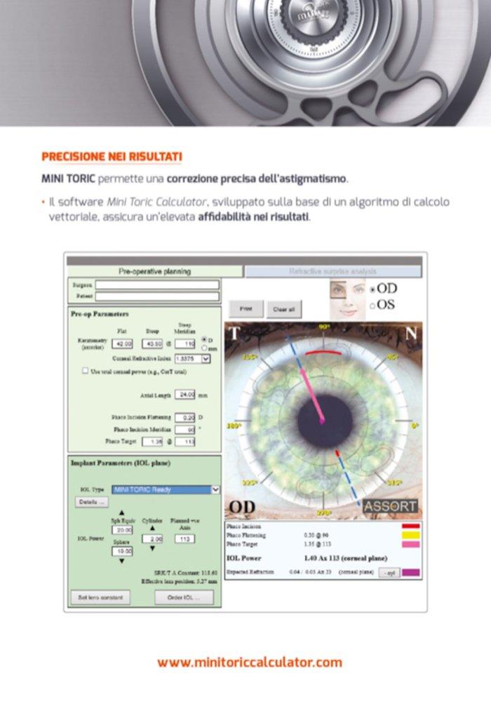 precisione nei risultati dei mini toric intraoculari