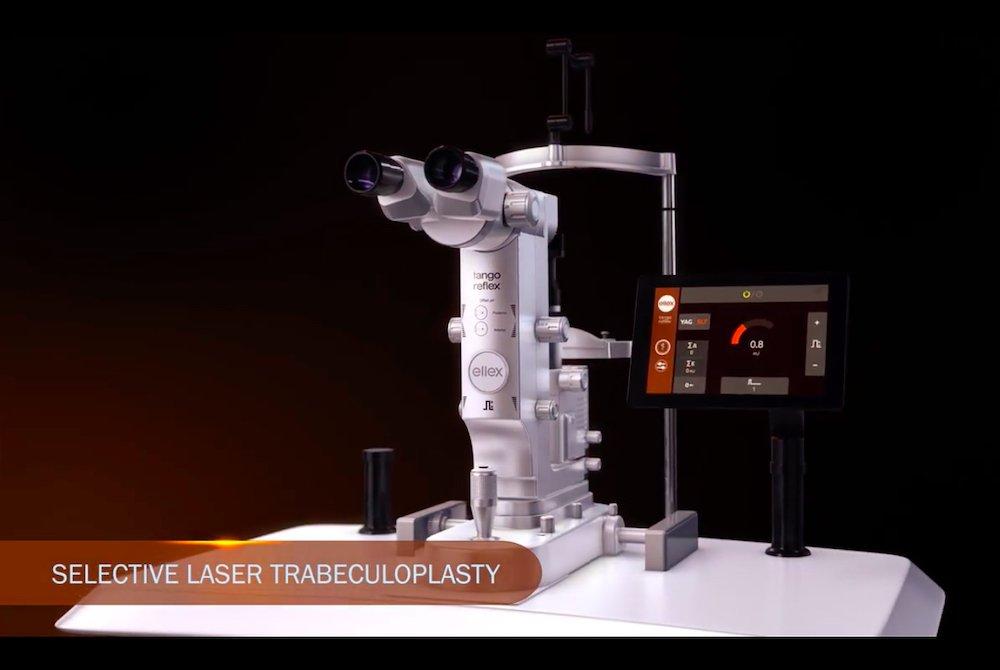 Trabeculoplastica selettiva laser slt