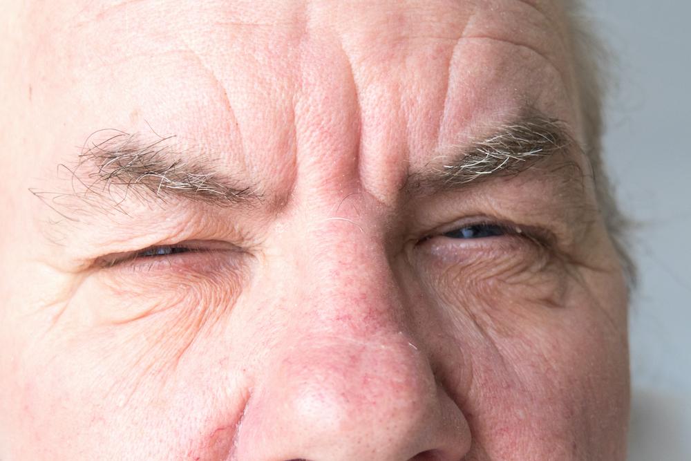 NOIA - Neuropatia ottica ischemica anteriore